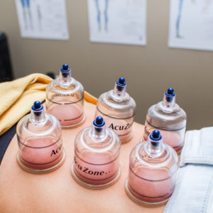 Cupping therapy for lower back pain